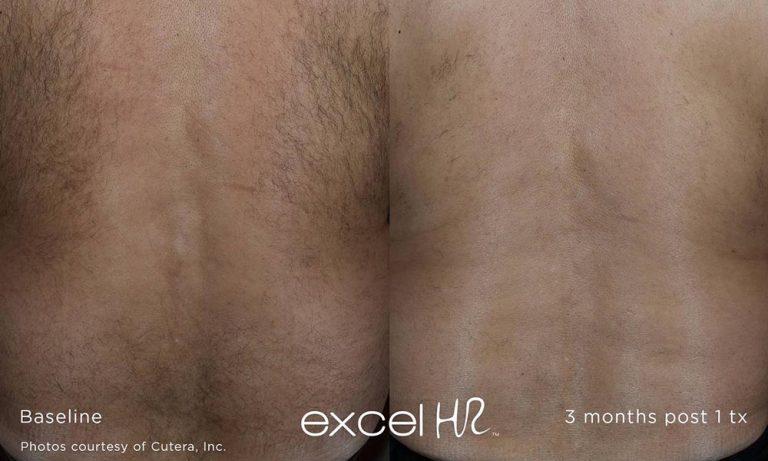 excel-HR_Hair_1-opt